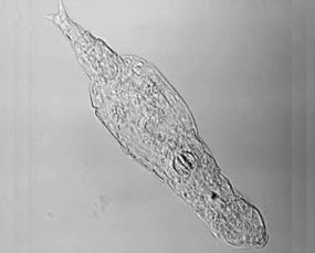 bdelloid rotifer